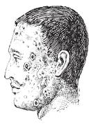 Human face infected with impetigo vintage engraving Stock Illustration