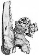 Osteophytes on the popliteal aspect of the lower end of the femur, vintage en Stock Illustration