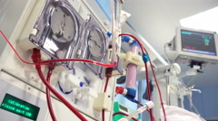 Dialysis Medical Device Performing Procedure Stock Footage