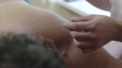 The doctor removes the acupuncture needle from shoulder of patient. Stock Footage