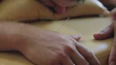 Close up. The doctor removes the acupuncture needle from arm of patient. Stock Footage