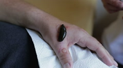 Medical leech is sucking blood from a patient's arm. Stock Footage