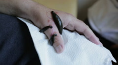 Three medical leeches are sucking blood from a patient's arm. Stock Footage