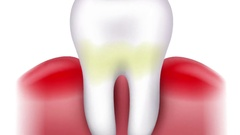 Dental caries formation Stock Footage
