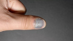 Blackened nail of hand (injury) Stock Footage