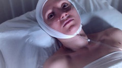 4k Hospital Shot of Sick Woman With Nasal Breathing Tube and Bandage Stock Footage