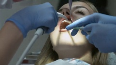 Medical dentist procedure of teeth polishing with cleaning from dental deposit Stock Footage