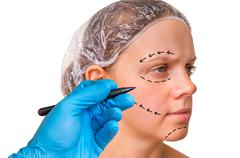 Doctor makes dotted lines on female face for cosmetic face lift - isolated on Kuvituskuvat
