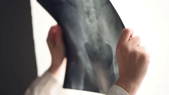 Female doctor examining pelvis x-ray in hospital office Stock Footage