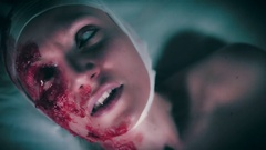 4k Hospital Dolly Shot of Injured Blind Woman Screaming, colour corrected Stock Footage