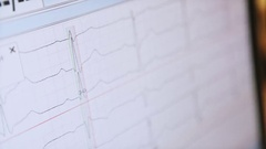 ECG waves on the hospital monitor Stock Footage
