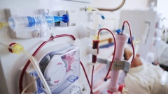 Bloodline tubes with hemodialysis machine in the background. Health care, blood Stock Footage