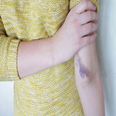 A huge bruise on the arm Stock Footage