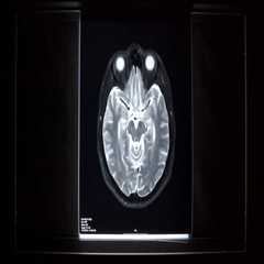 X-ray on illuminator panel - Brain. Stock Footage