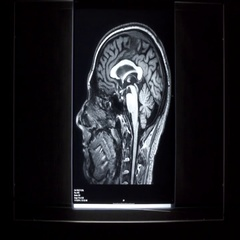 X-ray on illuminator panel - Brain Stock Footage