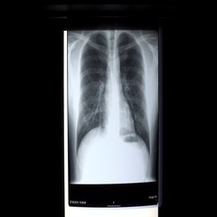 X-ray on illuminator panel - Rib Stock Footage