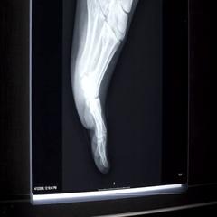 X-ray on illuminator panel - Foot Stock Footage