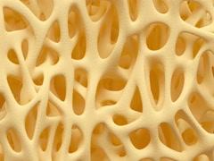 Bone osteoporosis animation Stock Footage