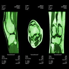 Knee MRI scan. Loopable. Stock Footage