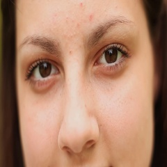 Teen girl face with acne close-up. On the face of acne. Brown eyes Stock Footage