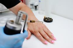 Removal of warts in dermatology clinic Stock Photos