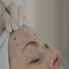 Doctor applying botox to patient Stock Footage