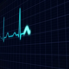 Heartbeat Curve  Stock Footage