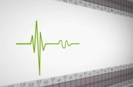 Left View - Close up - monitor - heartbeat line - green - SD Stock Footage
