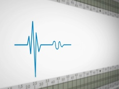 Left View - Close up - monitor - heartbeat line - blue - SD Stock Footage