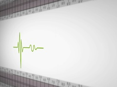 Right View - Close up - monitor - heartbeat line - green - SD Stock Footage