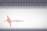 Upper View - Close up - monitor - heartbeat line - red - SD Stock Footage