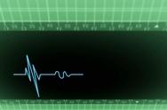 Upper View - Dark Screen - monitor - heartbeat line - green - SD Stock Footage