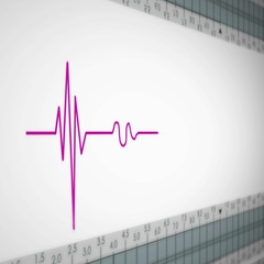 Left View - Close up - monitor - heartbeat line - purple Stock Footage