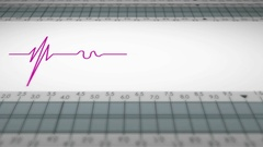 Bottom View - Close up - monitor - heartbeat line - purple Stock Footage
