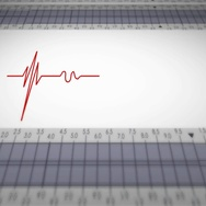 Bottom View - Close up - monitor - heartbeat line - red Stock Footage