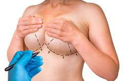 Doctor makes dotted lines on female body for cosmetic surgery Kuvituskuvat