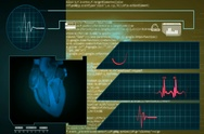 Heart - Interface - medical screen - graphics - yellow - SD Stock Footage