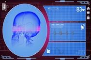 Skull - Interface - medical screen - purple - SD Stock Footage