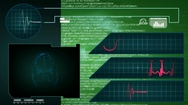 Brain - Interface - medical screen - graphics - green Stock Footage