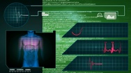 Digestion - Interface - medical screen - graphics - green Stock Footage