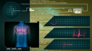 Digestion - Interface - medical screen - graphics - yellow Stock Footage