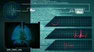 Lungs - Interface - medical screen - graphics - blue Stock Footage