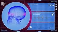Skull - Interface - medical screen - purple Stock Footage
