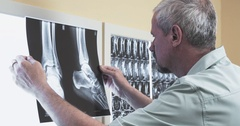 Male doctor reviewing x-ray 4k video. Puts xray foot scan illuminator panel Stock Footage