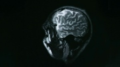 Computed tomography of the brain Stock Footage