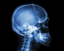 Film x-ray skull and cervical spine lateral view Stock Illustration