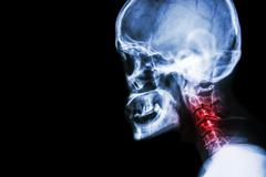 Cervical spondylosis . film x-ray skull lateral view and neck pain . Stock Illustration