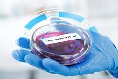 Blood sample positive with Zika virus Stock Photos