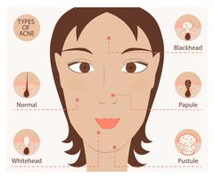 Types of acne and pimples Stock Illustration