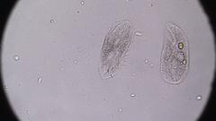 Microscopy - Stylonychia Ciliophora, under the microscope Stock Footage